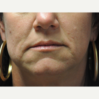 45-54 year old woman treated with Restylane before 2881432