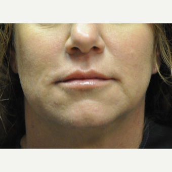 45-54 year old woman treated with Restylane after 2881432
