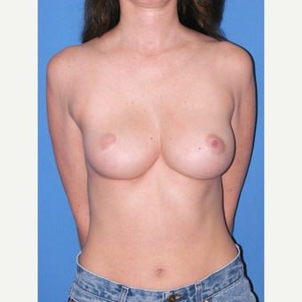 35-44 year old woman treated with Breast Implants before 3105679