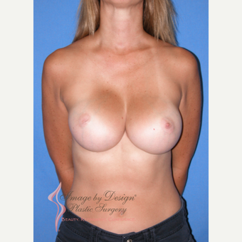 35-44 year old woman treated with Breast Implants after 3105679