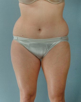 28-year old female Liposuction of Abdomen, Thighs, Flanks 1223707