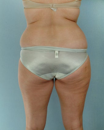 28-year old female Liposuction of Abdomen, Thighs, Flanks before 1223707