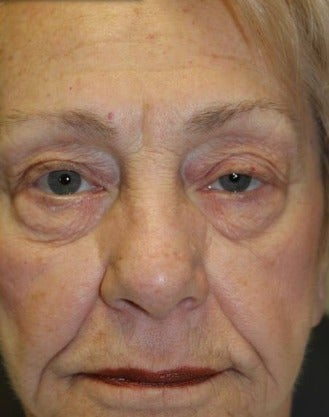 65-74 year old woman treated with Botox before 3286076