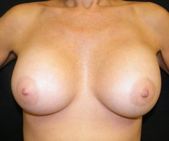 Breast Augmentation after 692456