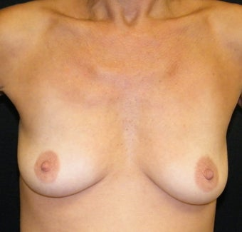 Breast Augmentation before 692456