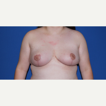 18-24 year old woman treated with Breast Reconstruction after 3769786