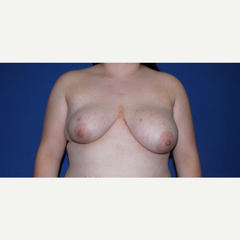 18-24 year old woman treated with Breast Reconstruction before 3769786