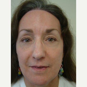 45-54 year old woman treated with Eye Bags Treatment after 2330735