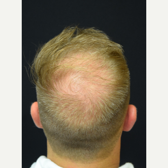 25-34 year old man treated with Hair Transplant before 3217861