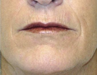 35-44 year old woman treated with Laser Peel