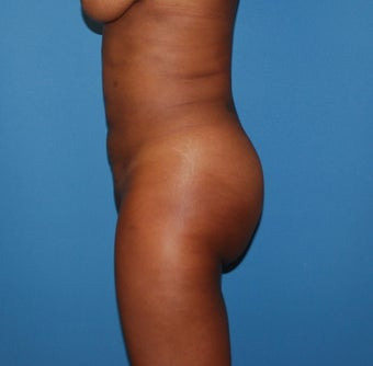 25-34 year old woman treated with Smart Lipo after 3683531