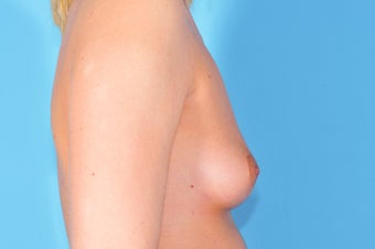 Breast Augmentation 153050