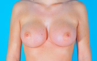 Breast Augmentation after 153050