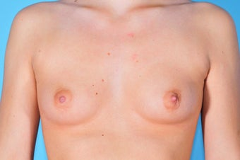 Breast Augmentation before 153050