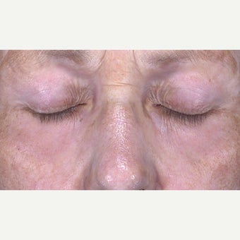 65-74 year old woman treated with CO2 Laser