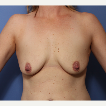 25-34 year old woman treated with Breast Lift with Implants before 3782974