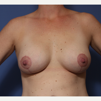 25-34 year old woman treated with Breast Lift with Implants after 3782974