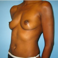 Breast Augmentation before 3665700