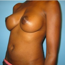 Breast Augmentation after 3665700