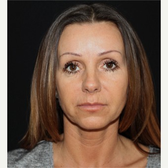 45-54 year old woman treated with Facelift before 3498642