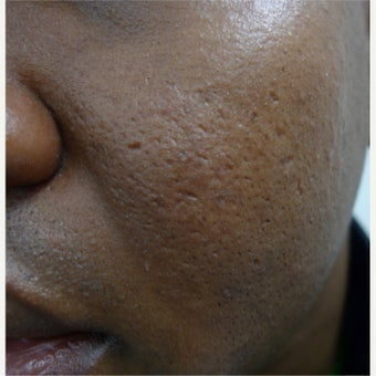 African skin treated with TCA