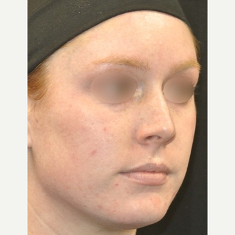 18-24 year old woman treated with IPL