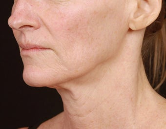 Skin Tightening for the Lower Face and Neck after 1351782