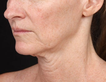 Skin Tightening for the Lower Face and Neck before 1351782