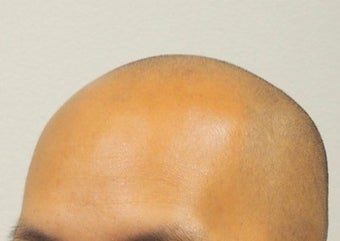 18-24 year old man treated with Hair Loss Treatment Scalp MicroPigmentation SMP before 1967533
