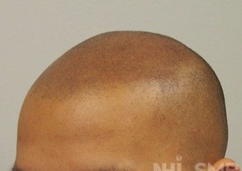 18-24 year old man treated with Hair Loss Treatment Scalp MicroPigmentation SMP after 1967533