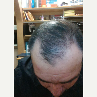 45-54 year old man treated with FUE Hair Transplant after 3618622