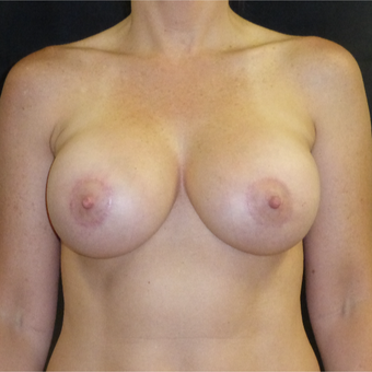 45-54 year old woman treated with Breast Lift with Implants after 3481152