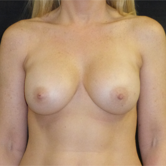 45-54 year old woman treated with Breast Lift with Implants before 3481152