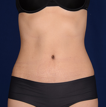 Tummy Tuck after 1285652