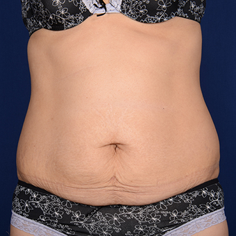 Tummy Tuck before 1285652