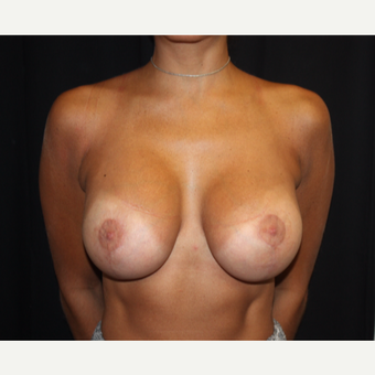 25-34 year old woman treated with Breast Lift with Implants after 3339068