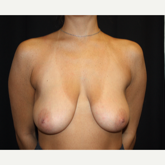 25-34 year old woman treated with Breast Lift with Implants before 3339068