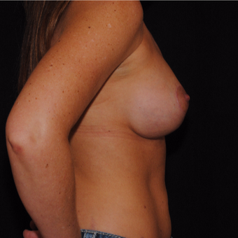35-44 year old woman treated with Breast Lift with Implants after 3500470