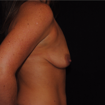 35-44 year old woman treated with Breast Lift with Implants before 3500470