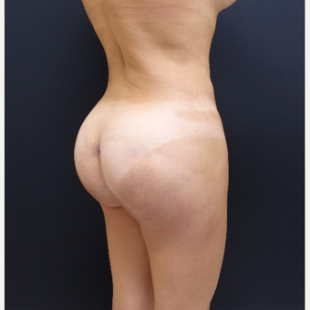 35-44 year old woman treated with 548cc Butt Implants after 3235647
