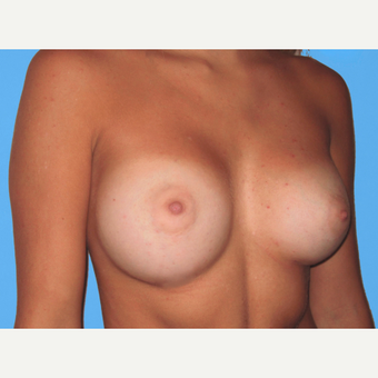 Breast Augmentation after 3731590