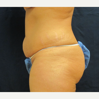 35-44 year old woman treated with Tummy Tuck before 3301313