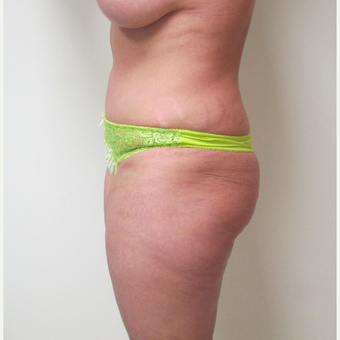 35-44 year old woman treated with Tummy Tuck after 3301313