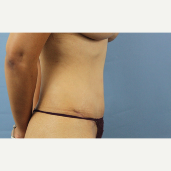 35-44 year old woman treated with Tummy Tuck after 3207349