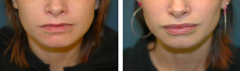 Lip Augmentation with Implant before 1098212
