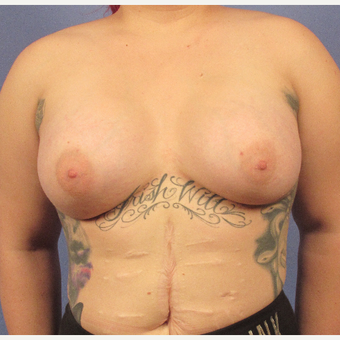25-34 year old woman treated with Breast Augmentation after 3106303