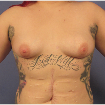 25-34 year old woman treated with Breast Augmentation before 3106303