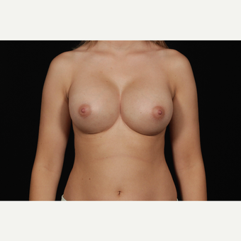 45-54 year old woman treated with Breast Augmentation after 3126413