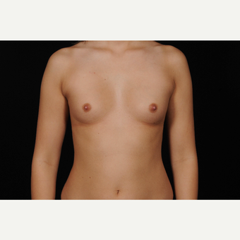 45-54 year old woman treated with Breast Augmentation before 3126413