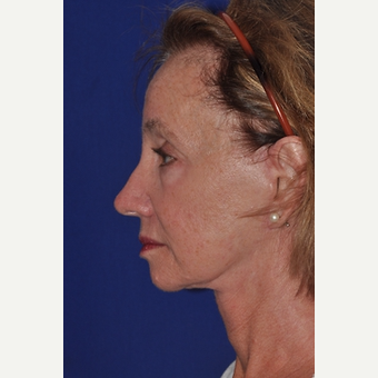 35-44 year old woman treated with Injectable Fillers before 3770977